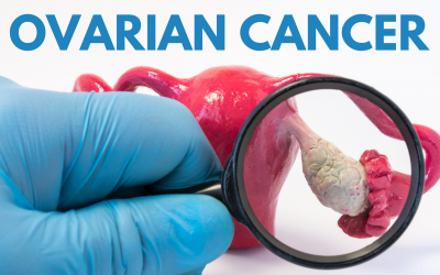 Ovarian Cancer; Why Early Diagnosis is so Important
